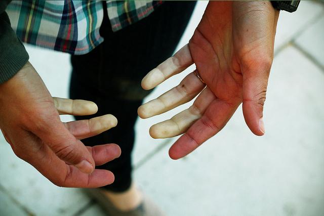 Hladnoću u rukama uzrokuje i slaba cirkulacija