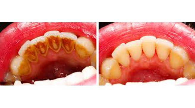 Parodontax pasta za zube cijena