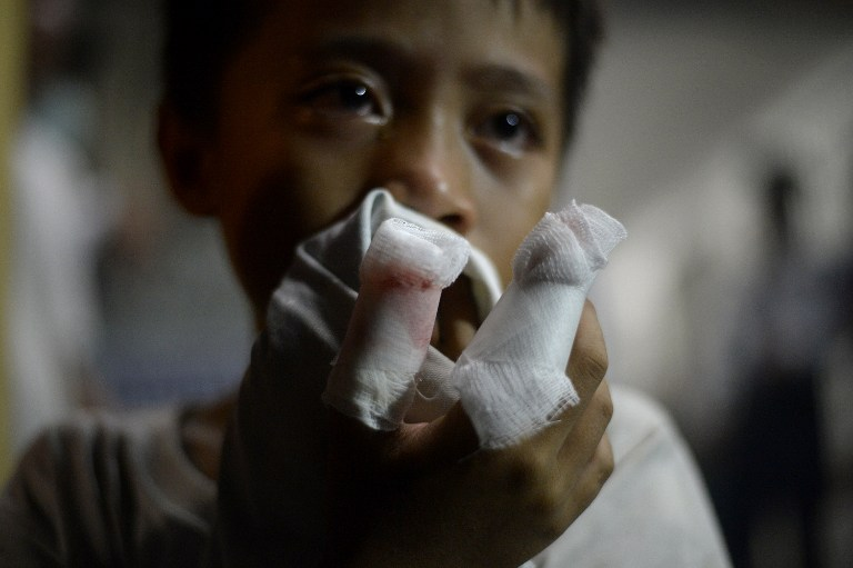 A boy injured from fireworks used during New Year's celebrations shows off his bandages after being treated at the Jose Reyes Memorial Medical Center in Manila early on January 1, 2016. Stray bullets and exploding firecrackers killed one person and injured almost 200 others as the Philippines plunged into its annual chaotic New Year revelry, authorities said late on December 31. AFP PHOTO / NOEL CELIS / AFP / NOEL CELIS