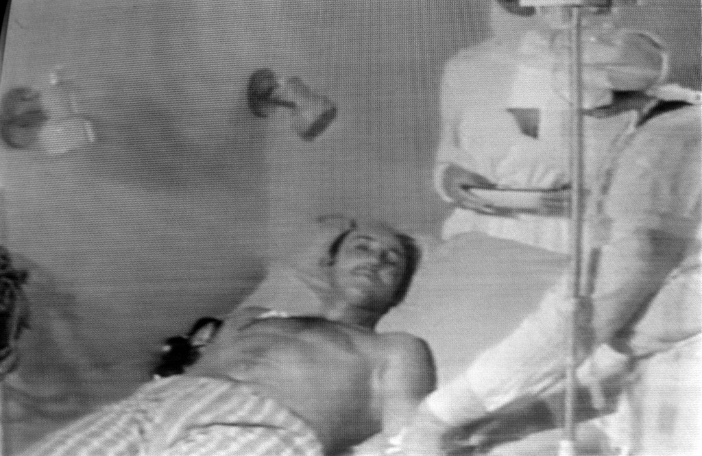 Ova fotografija muškarca koji je ozlijeđen u eksploziji nastala je nepoznatog datuma, a emitirana je na sovjetskoj televiziji. Prema izvješću Svjetske zdravstvene organizacije, poginulo je preko 4000 ljudi, iako se oko točnog broja stradalih još uvijek spori. Prema Ukrajini, oko 2,4 milijuna njenih stanovnika zbog černobilske eksplozije ima zdravstvene posljedice, a među njima je 428.000 djece.