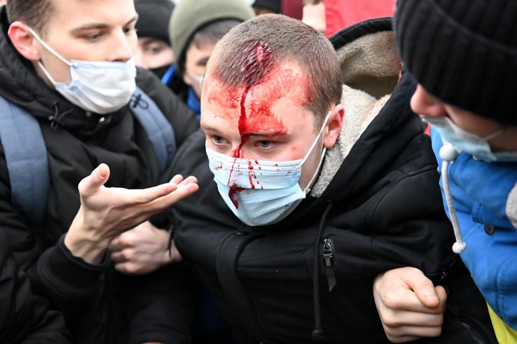 Prosvjednici su se u jednom trenu sukobili s policijom, ali još nema informacija o broju ozlijeđenih.
